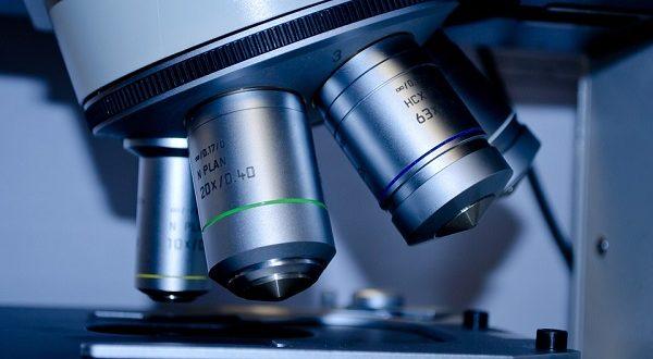 Sclerosi multipla, autotrapianto cellule staminali blocca la progressione della malattia